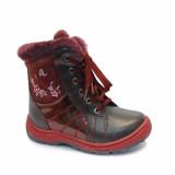 Детская ортопедическая обувь ботинки ЗИМНИЕ Сурсил Орто (Sursil-Ortho) A43-047 на молнии